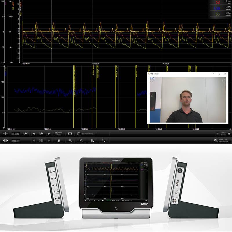 Synchronizacja obrazu wideo – nowa funkcja opcji GAT (Finapres NOVA)