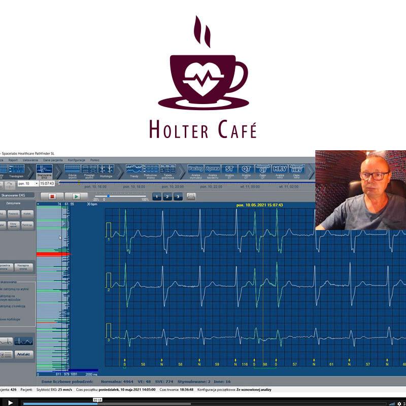 """Rozwiązanie zagadki o rytmach ze szkolenia """"Holter na lato"""""""